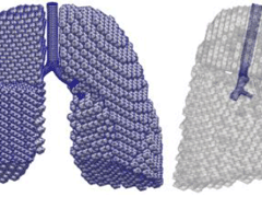 [AOP]Osaka University - Novel interpretations of respiratory impedance in COPD based on computational fluid dynamics