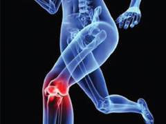 Computational Analysis of Quadriceps Tendon Force Following Total Knee Replacement Surgery Leads to Improved Patient Knee Flexure