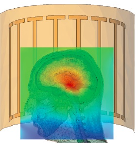 FEKO: RF Design and Safety of MRI Systems