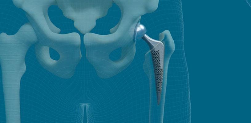 Additive manufactured medical implant, solid lattice hip prosthesis, selective laser melting