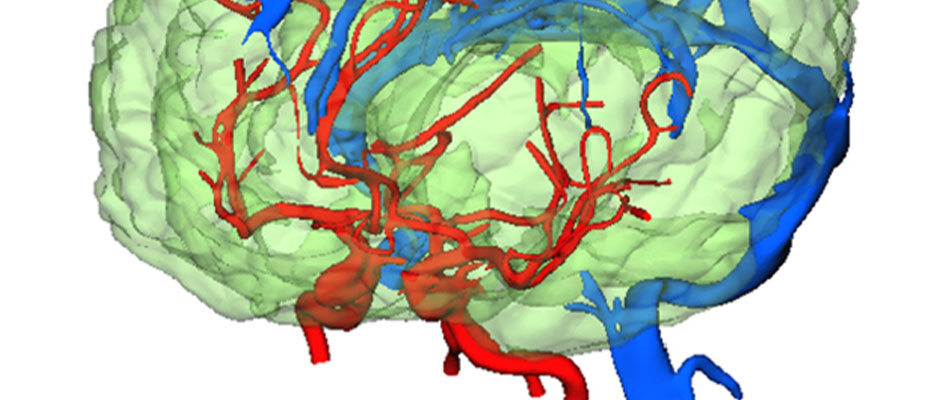 Cerebral blood flow simulation based on measurement shapes of the brain and main blood vessels.