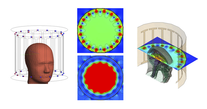 Simulation of an MRI with the electromagnetic solver FEKO