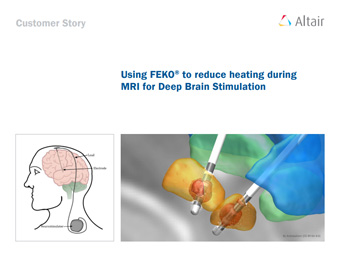 Using FEKO® to reduce heating during MRI for Deep Brain Stimulation