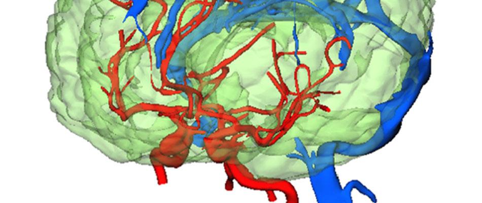 基于脑和主要血管测量形状的脑血流模拟。